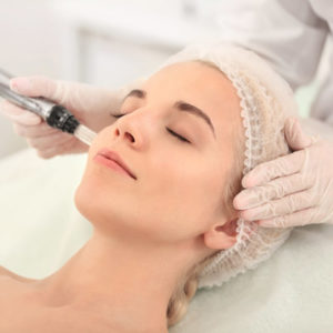 Micro'Lift-needling-et-Micro'Peel